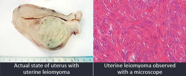 E-1 Uterine myoma image 3