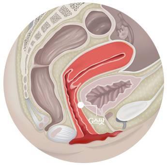 B-5 Extra(stem cell vaginoplasty, G-spot, Implant, PRP, L1) image 12