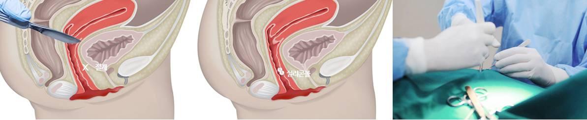 B-5 Extra(stem cell vaginoplasty, G-spot, Implant, PRP, L1) image 15