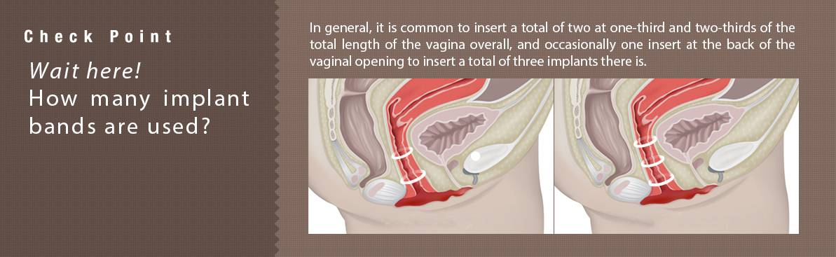 B-5 Extra(stem cell vaginoplasty, G-spot, Implant, PRP, L1) image 22