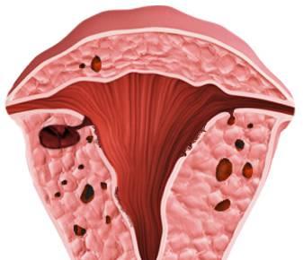 E-2 Adenomyosis image 3