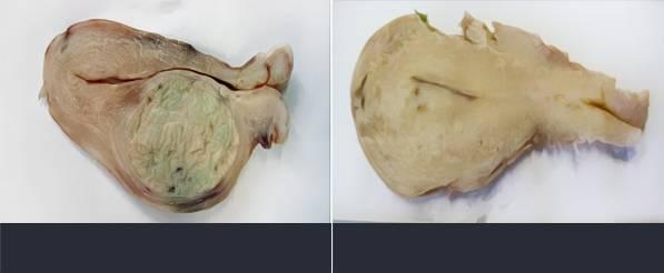 E-2 Adenomyosis image 5