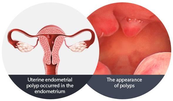 E-3 Endometrial polyp image 2